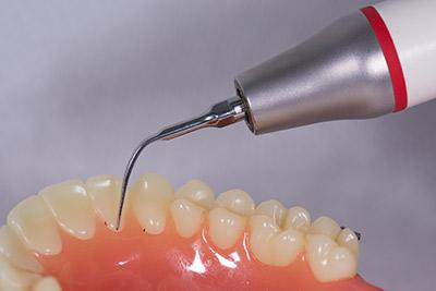 A fogkőleszedés 5 előnye