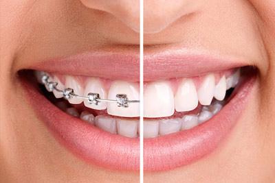 Érvek a fogszabályozás mellett