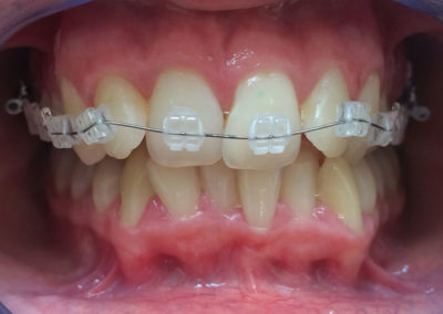 denture with braces