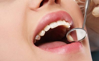 Miért kiemelkedően fontos a rendszeres fogorvosi vizsgálat?