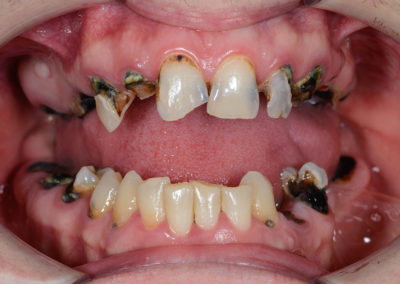 damaged incisors