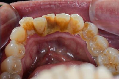 Gyakori kérdések a fogkő eltávolításról