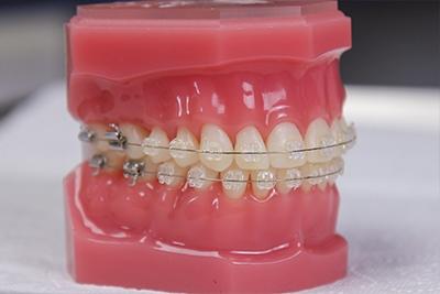 5 érv a fogszabályozás mellett