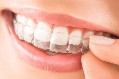 Mit jelent a láthatatlan fogszabályozás?