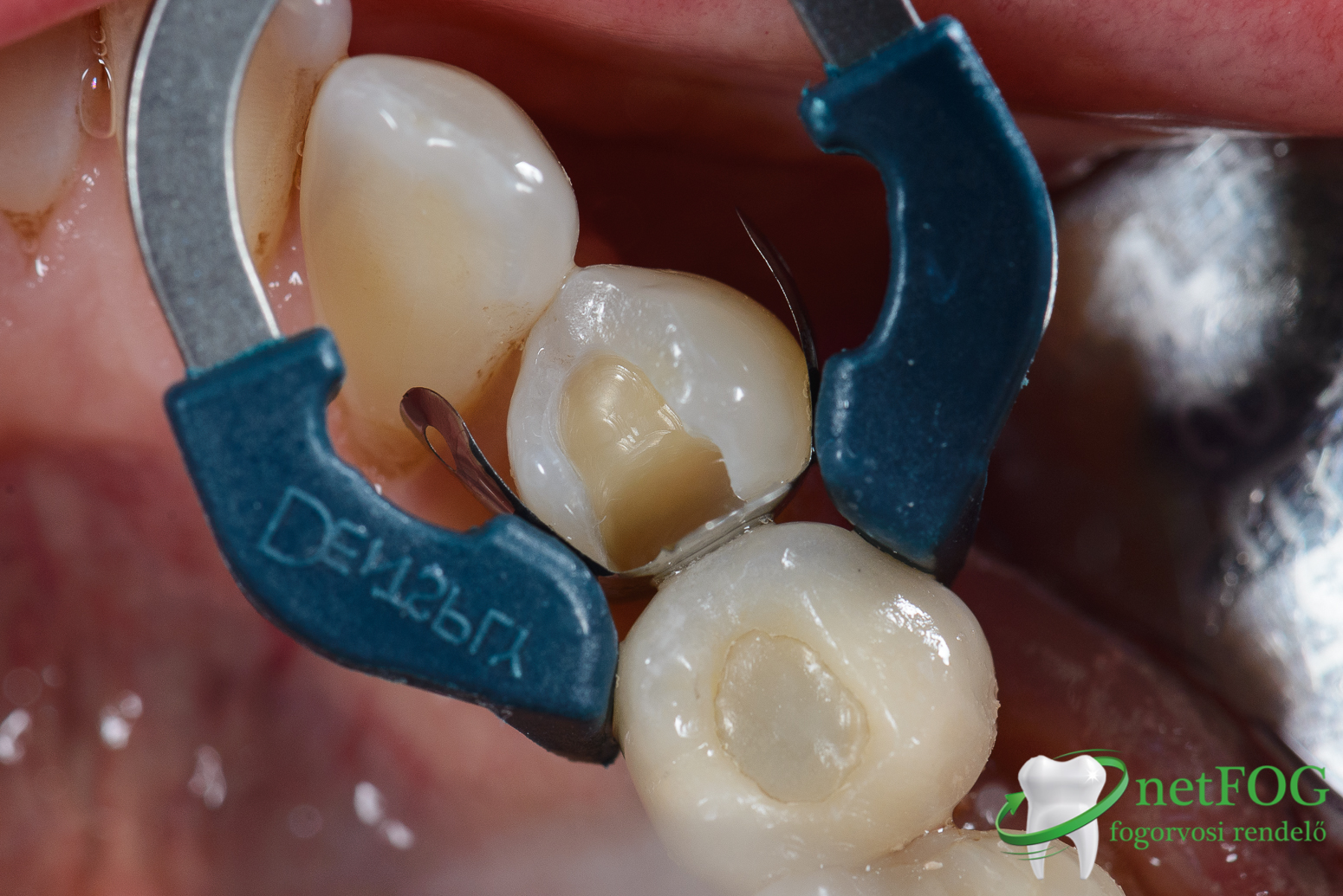 esztétikus fogtömés készítésének egyik lépése, látható a matrica és a kialakított üreg a fogban