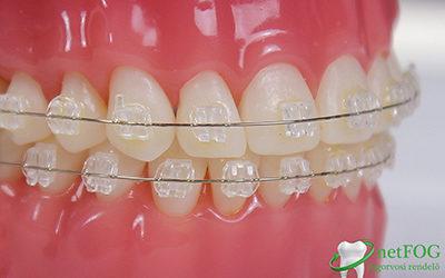 Felnőtt fogszabályozás - Sosem késő belevágni!