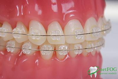 Felnőtt fogszabályozás – Sosem késő belevágni!